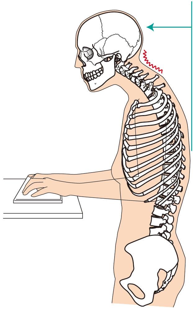デスクワーク中の背中の丸みを説明した骨格図